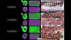bone-growth-from-three-dimensional-printed-implant-rev